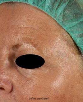Womens opinion of facial hair