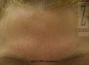 Treating facial acne